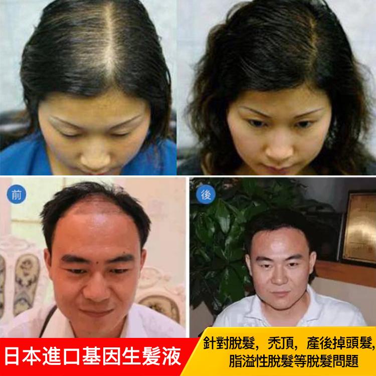 MSLAM基因生髮液